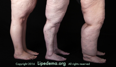 Often misdiagnosed as obesity, lipedema is a painful and body disfiguring condition affecting an estimated 11 percent of adult women in the United States. (Photo: Lipedema Foundation)